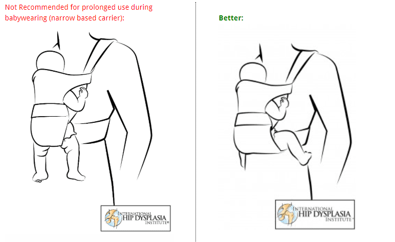 Baby Carrier Hip Dysplasia Lawsuits